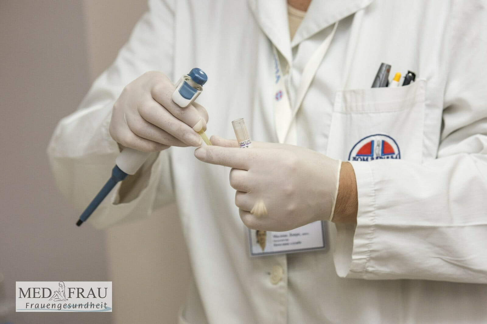 Valacyclovir Valtrex Cytomegalovirus